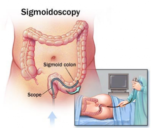 Flexible-sigmoidoscopy-